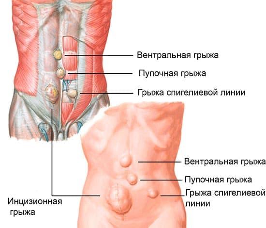 Виды грыж у мужчин: межпозвоночные, пупочные, брюшной полости