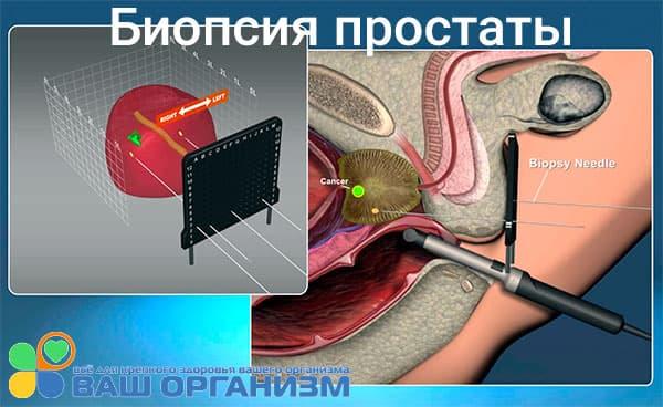 Что такое биопсия простаты и как она проводится?