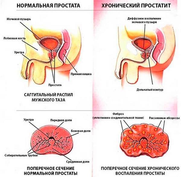 Симптомы и лечение всех стадий и форм простатита