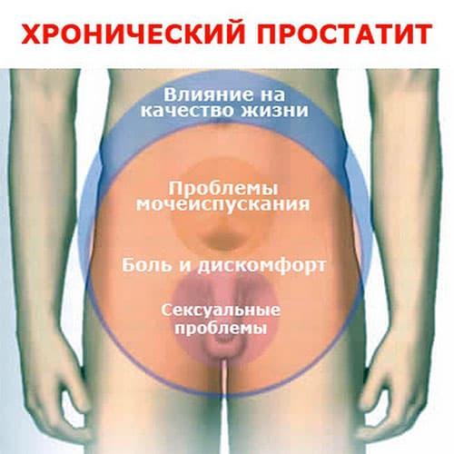 Симптомы простатита и лечения