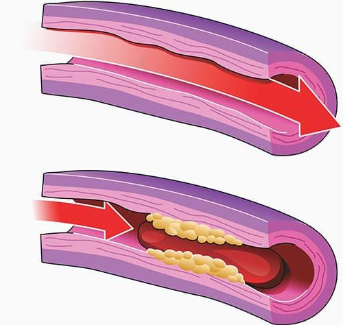 Методы терапии профилактики тромбофлебита нижних конечностей