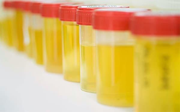 С чего стоит начинать лечение простатита?