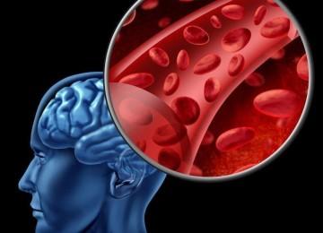 Улучшаем кровообращение головного мозга