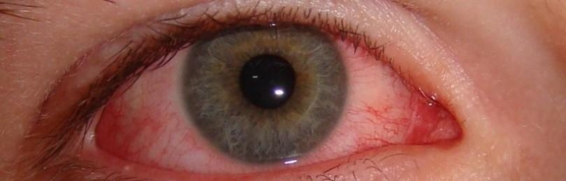 Покраснение глаз: возможные причины и способы устранения проблемы