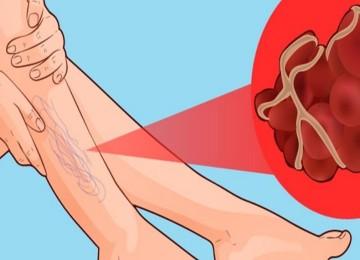 Тромбы в сосудах человека: симптомы и болезни