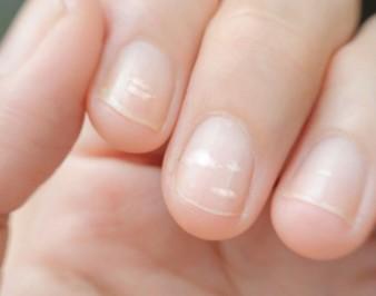 Почему появляются белые полоски на ногтях
