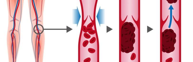 Тромбоз: что это, причины, как предотвратить появление тромбов