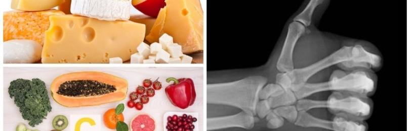 Какие витамины укрепляют костную ткань