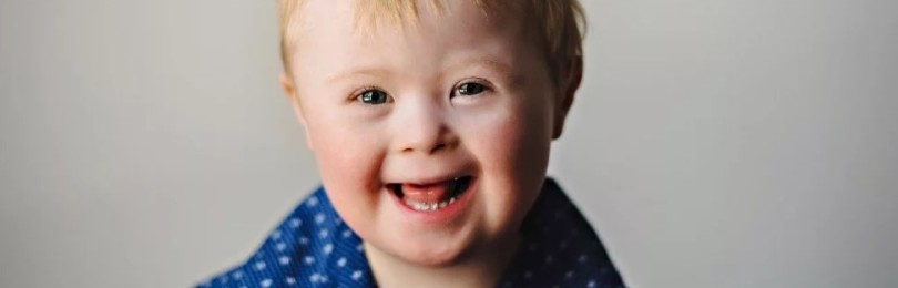 Синдром Дауна: откуда появляются «солнечные дети»