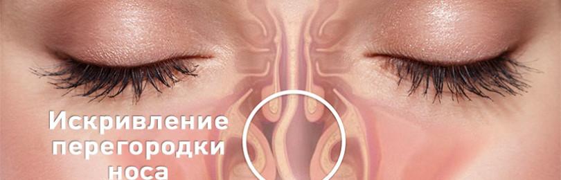 Чем опасно искривление носовой перегородки?