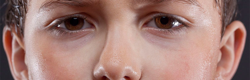 Почему у ребенка сильно потеет голова?