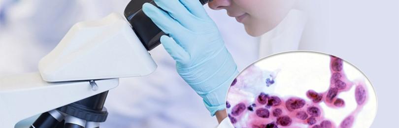 Что такое и чем опасны атипичные клетки?