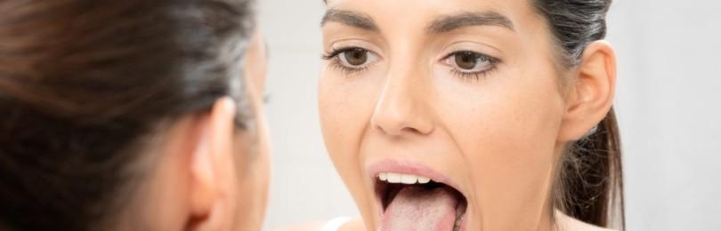 При каких заболеваниях чувствуется онемение языка