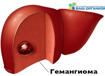 Гемангиома печени — описание, виды, причины, симптомы и лечение