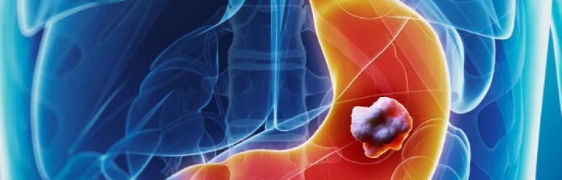 Рак желудка: как его определить на ранней стадии