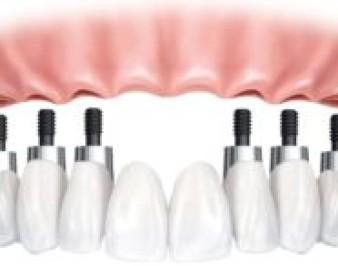 Имплантация зубов All-on-6: особенности и плюсы методики, кому она подойдет