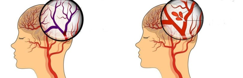 Как узнать, что у человека случился инсульт