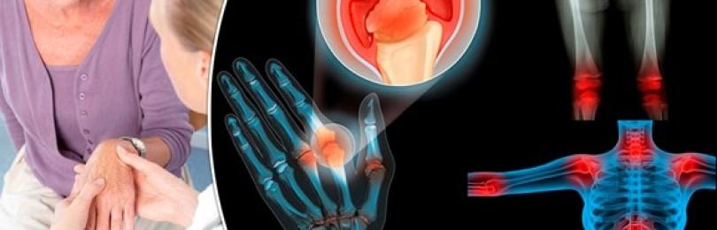 Артрит и артроз: в чем сходства заболеваний и отличия