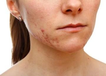 Как устранить шрамы и следы от прыщей в домашних условиях
