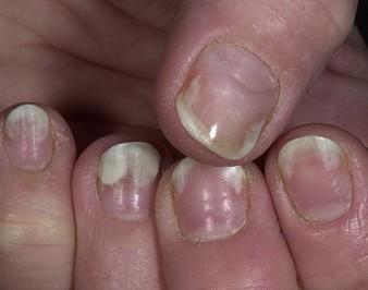 Что такое онихолизис ногтей и как его вылечить