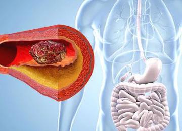 Самые первые симптомы тромбоза кишечника
