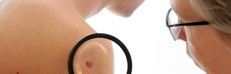 Меланоцитарный невус – описание, виды, осложнения, методики удаления