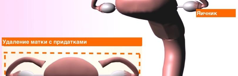 Удаление матки и яичников после 50 лет: показания, виды, последствия