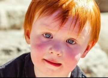 Аллергия на солнце у детишек: причины ее возникновения, симптомы, методы лечения