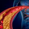 5 малоизвестных фактов о холестерине
