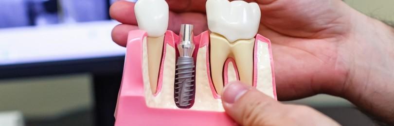 Качественная имплантация зубов: преимущества, виды, основные этапы процедуры