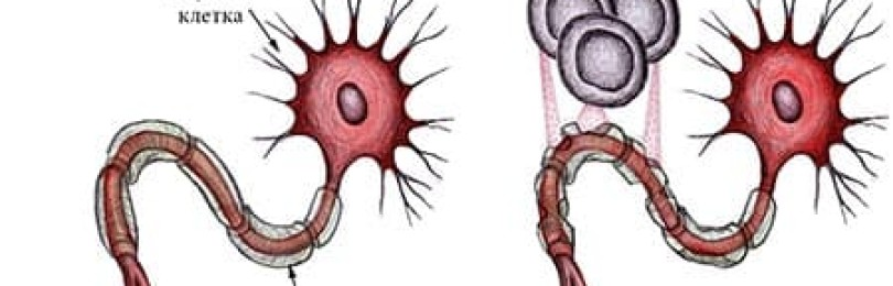 Рассеянный склероз – описание, симптомы, причины и лечение