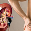 5 правил для того, чтобы избежать мочекаменную болезнь