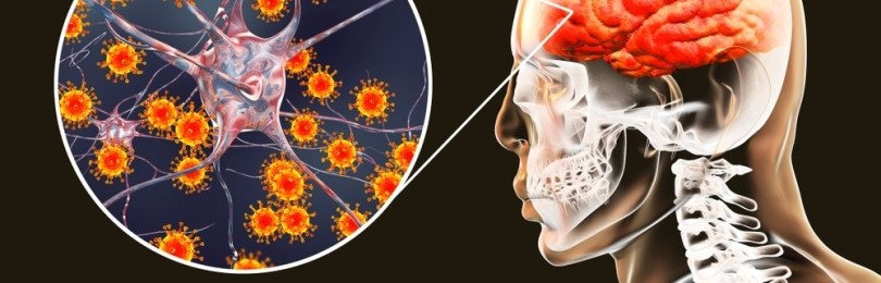 Как распознать менингит у взрослых и детей