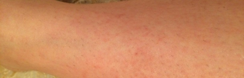 Зуд кожи на ногах: причины и способы решения проблемы