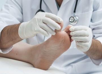 Грибок ногтей и кожи стоп: стадии прогрессирования заболевания ногтей и особенности лечения