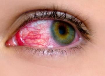 Красные капилляры в глазах: причины и способы лечения
