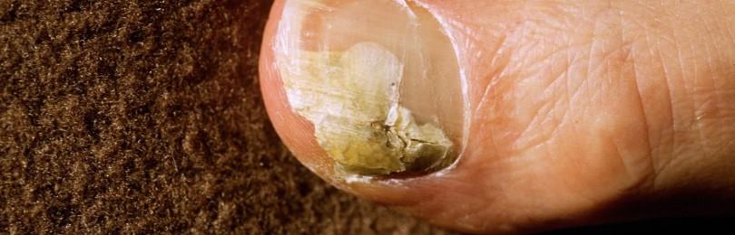 Грибковое поражение ног: быстрое и эффективное лечение