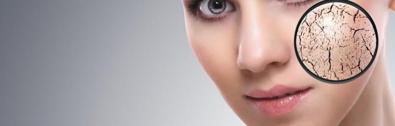 Шелушение кожи на лице: причины и средства борьбы
