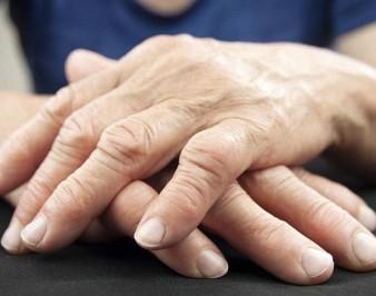 Заболевания артрит и артроз: их симптомы и отличия