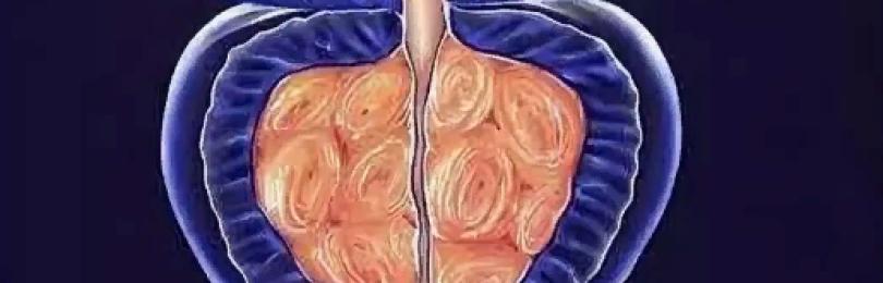 Аденома простаты. Диагностика и лечение