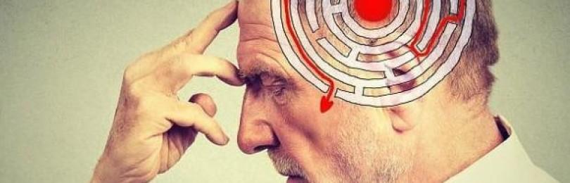 Факты о болезни Альцгеймера: что нужно знать