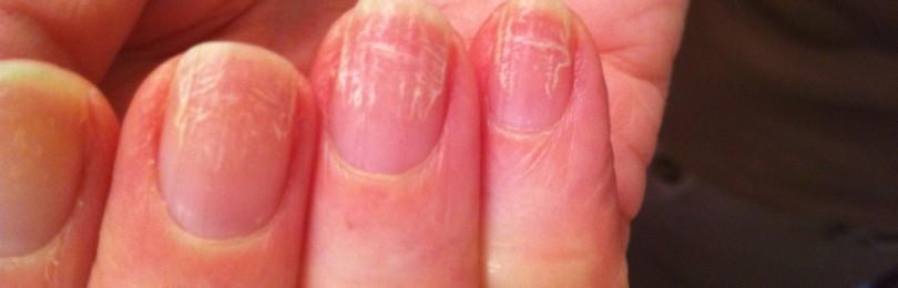 Где и как лечить грибок ногтей