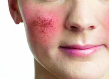 Как снять раздражение на коже