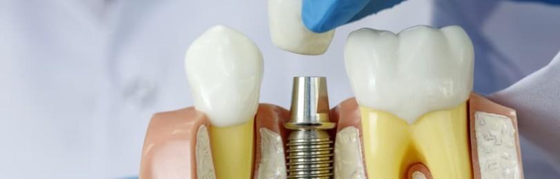 Имплантация зубов: особенности этой стоматологической процедуры, кому она подходит