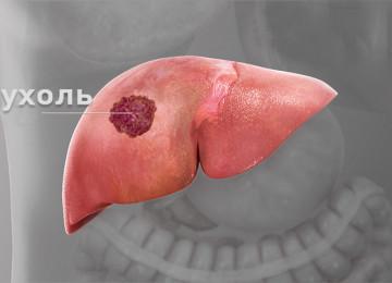 Доброкачественные и злокачественные опухоли печени