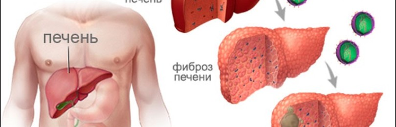Гепатит В и С: способы заражения, главные симптомы
