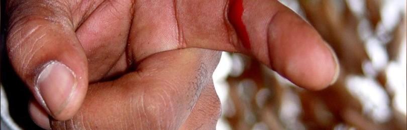Как остановить кровотечение при порезе пальца