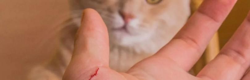 Болезнь кошачьих царапин: чем опасен фелиноз и как его лечить