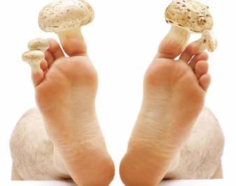Нужно ли лечить грибок