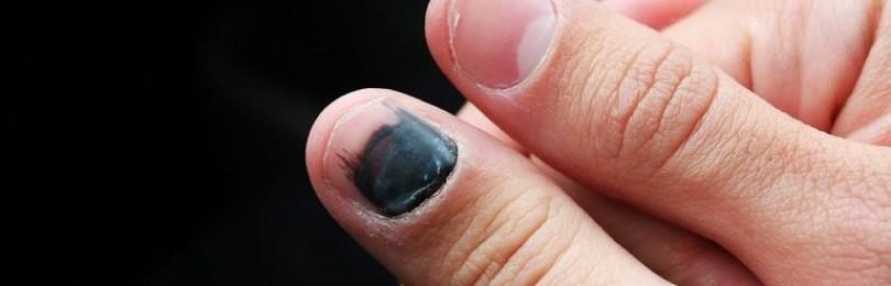 Прищемил палец, ноготь посинел: что сделать, чтобы боль прошла